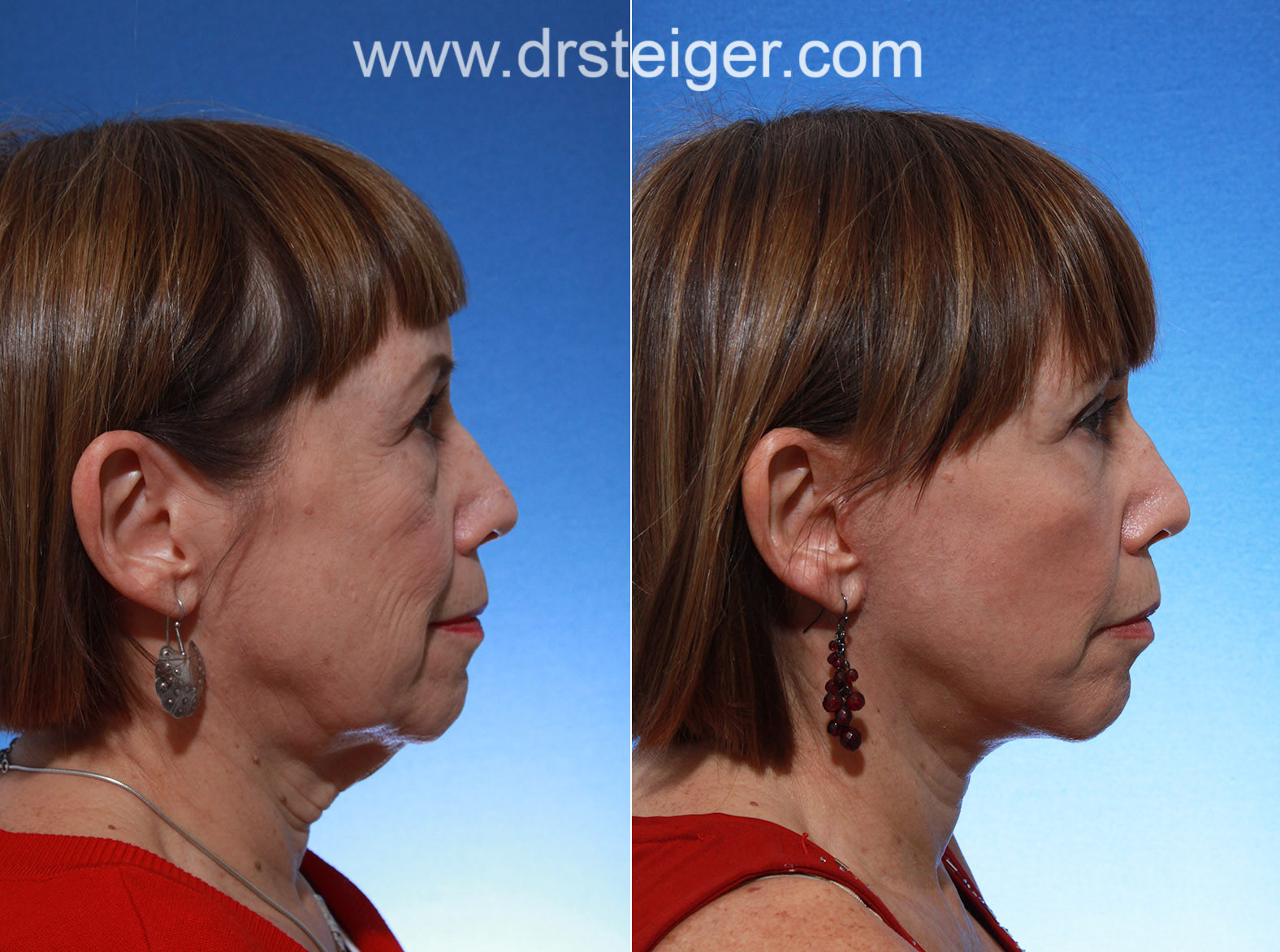 Facelift surgery with eyelid surgery photos