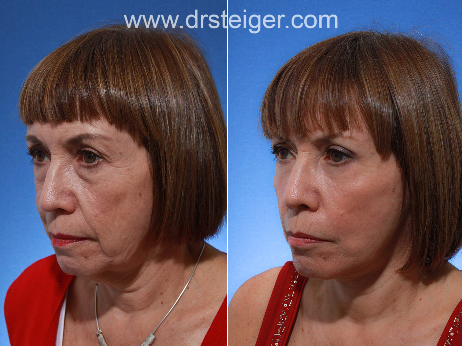 before and after deep plane facelift photos