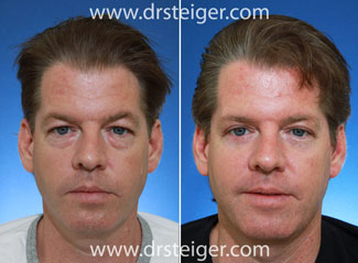 male eyelid surgery before and after photo