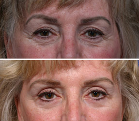 blepharoplasty female