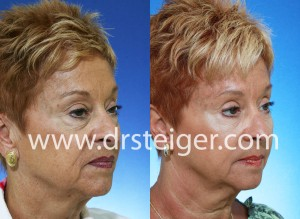 blepharoplasty-with-fat-grafting