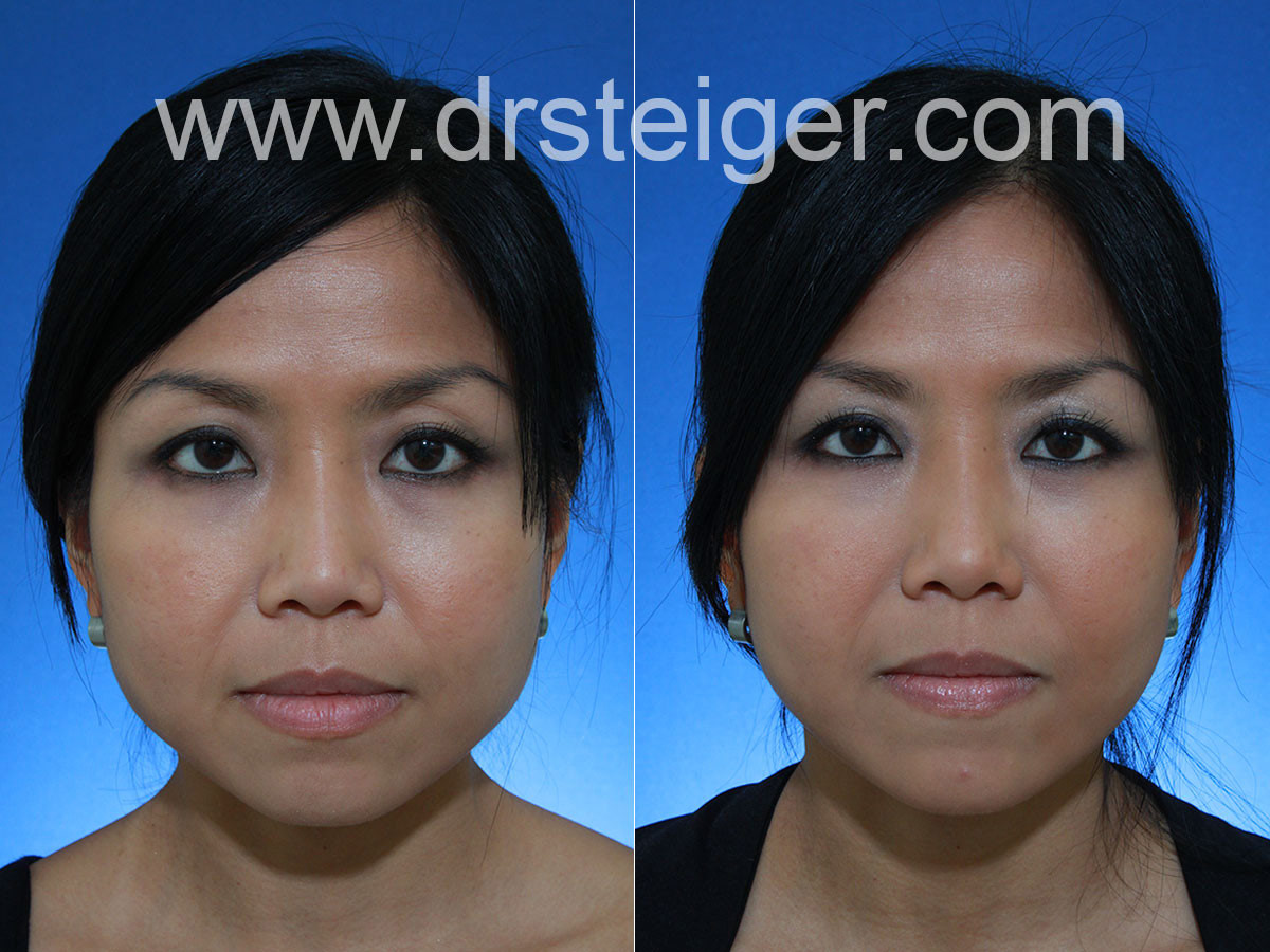 Jaw Reduction Singapore | Face Slimming