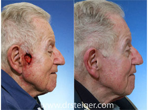 cheek reconstruction south florida