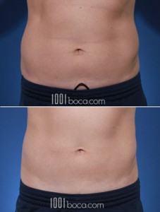 coolsculpting-love-handle-pictures