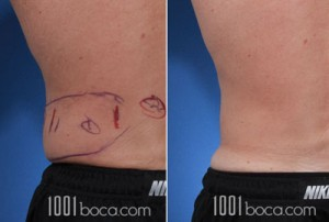 coolsculpting-man-love-handle-photo