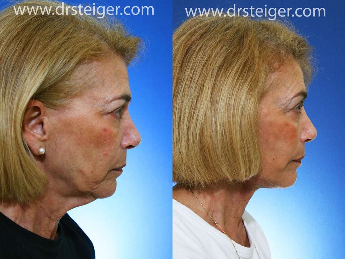 Mini Facelift Before After Photo Gallery Denver Colorado Springs Before and after facelift photos