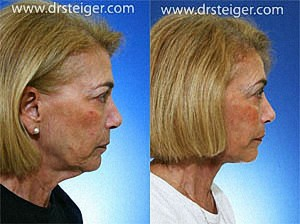 deep-plane-facelift-results1