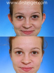 otoplasty photos