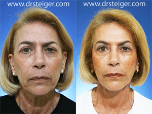 facelift-photo-before-and-after