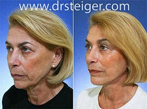 facelift-pictures1
