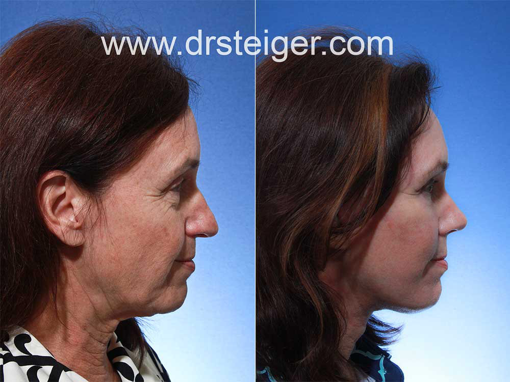 facelift with rhinoplasty