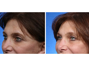 fat transfer around the eyes boca raton