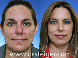 fractional co2 laser acne scars