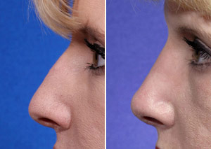 rhinoplasty for a hump