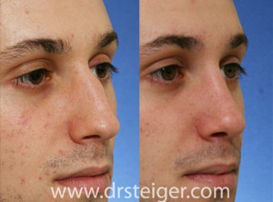 Rhinoplasty for a nose hump