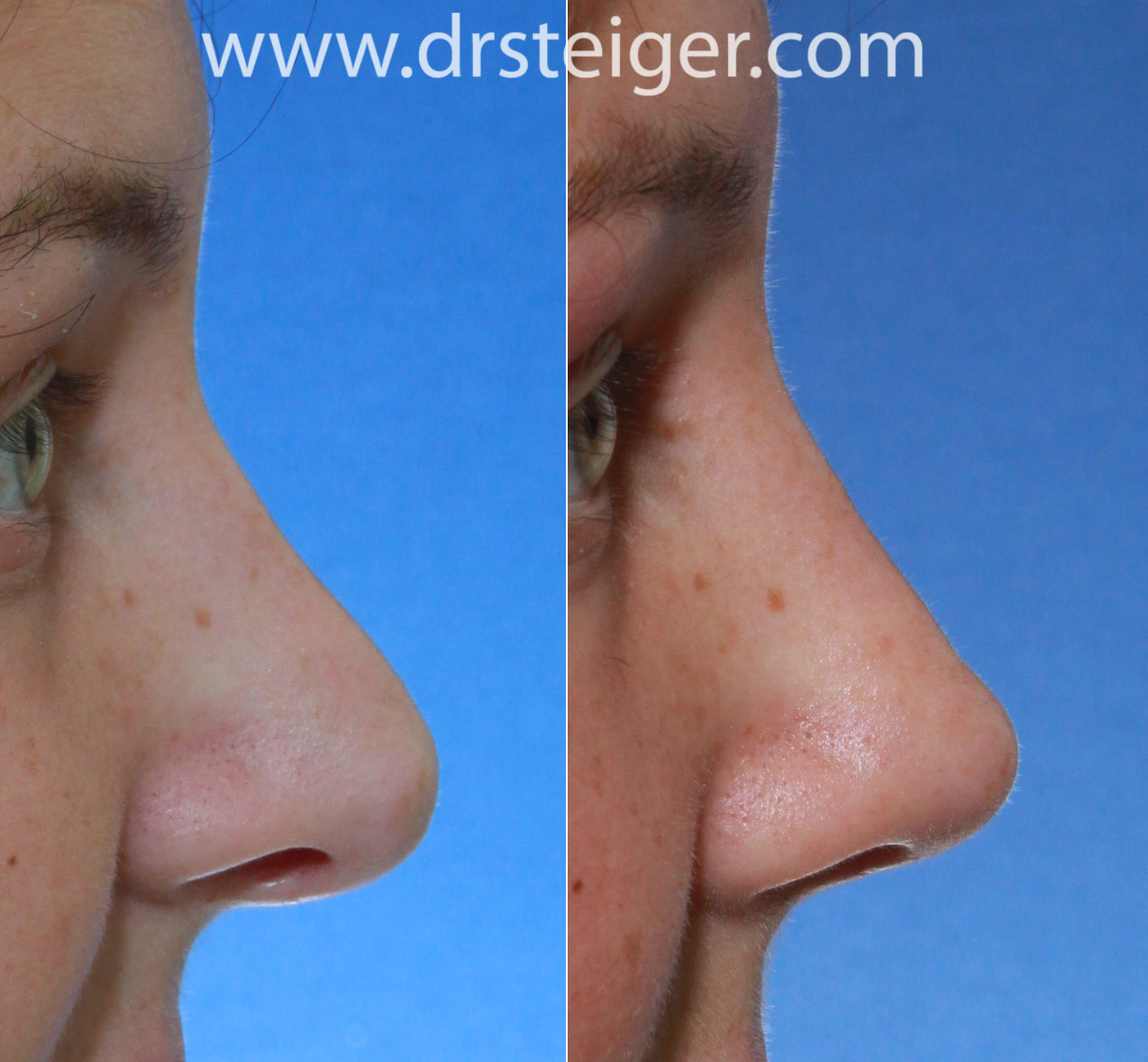 revision rhinoplasty to lift the nasal tip