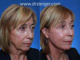 lower blepharoplasty rejuvenation