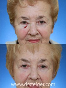 lower-eyelid-repair