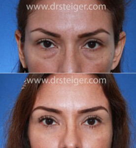 lower-eyelid-surgery