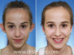 teenager otoplasty south florida
