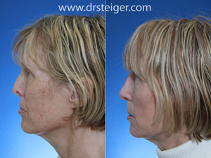revision-rhinoplasty-photos