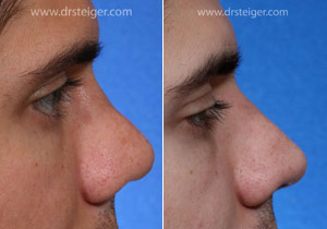 rhinoplasty after trauma to the nose