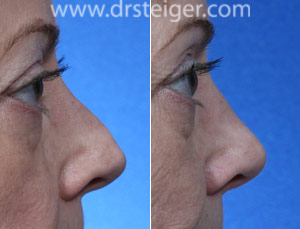 south florida rhinoplasty