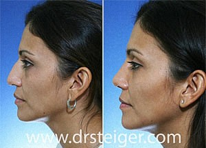 rhinoplasty for a droopy tip