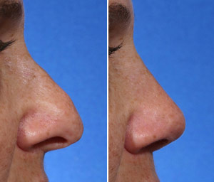 rhinoplasty for a hook nose