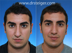 rhinoplasty on man