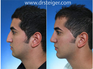 rhinoplasty with chin implant man