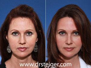 south florida rhinoplasty expert