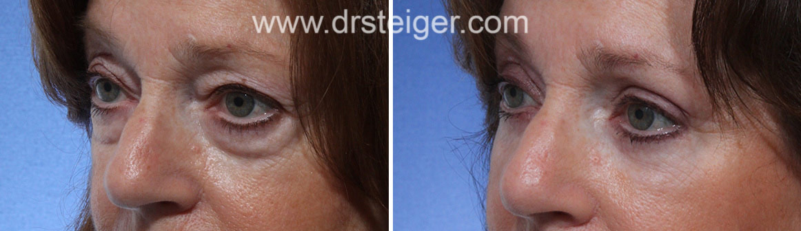 Upper and Lower Eyelid Surgery South Florida