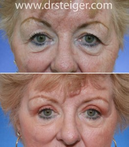 upper-blepharoplasty-surgery-pictures