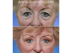 upper blepharoplasty surgery pictures