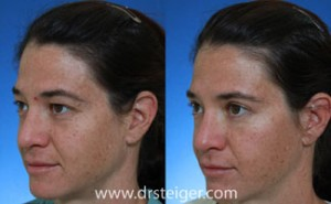 upper-eyelid-surgery-before-and-after