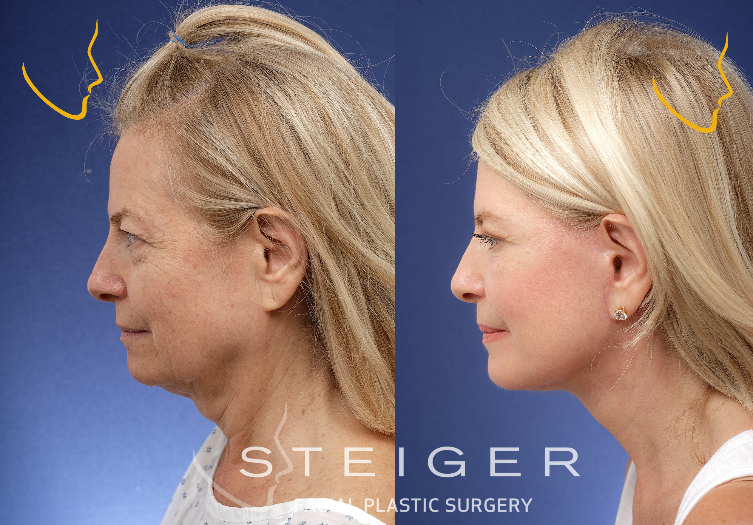 deep plane facelift results