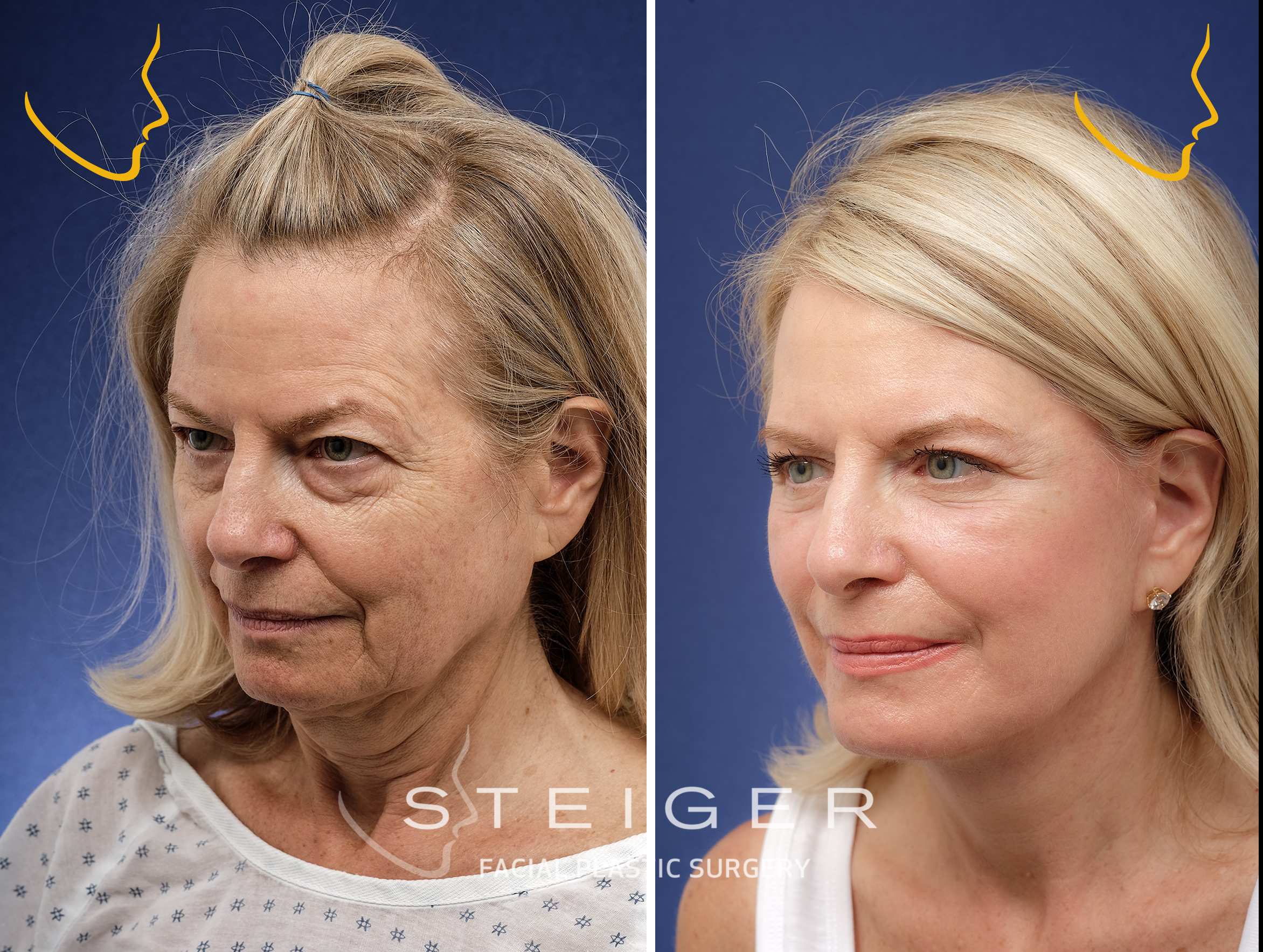 facelift in Boca Raton