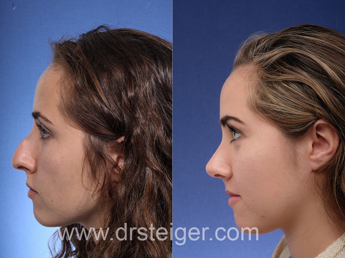 palm beach rhinoplasty