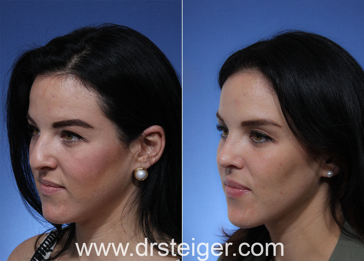 Rhinoplasty Photos - Best Surgeon