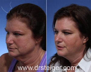 ThermiTight, Neck Lift, Facelift, Non-surgical, Boca Raton, jowls, neck, minimally invasive