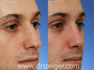 before and after rhinoplasty for a hump