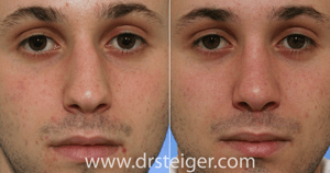 before and after rhinoplasty for a crooked nose
