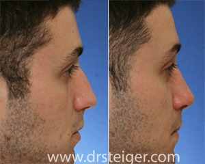 before and after rhinoplasty for a nasal hump
