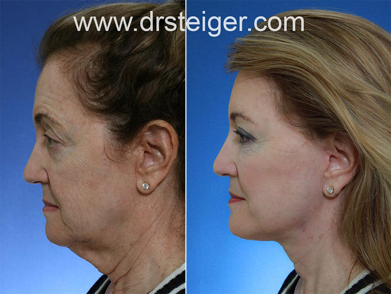 Best Facelift Surgeon