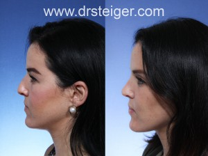 best rhinoplasty surgeon Florida