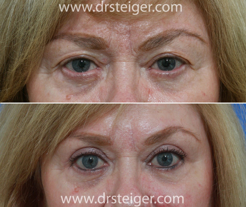 Blepharoplasty Eyelid Surgery Photos Before and After