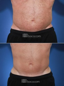 coolsculpting-man-abdomen-photo