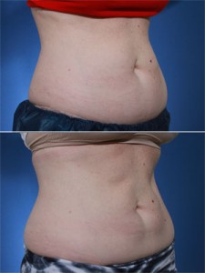 coolsculpting-photos