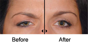 dysport-eyebrow-lift1